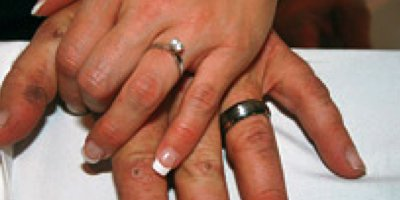 a husband and wife and their wedding rings, the grooms hands have concrete burns